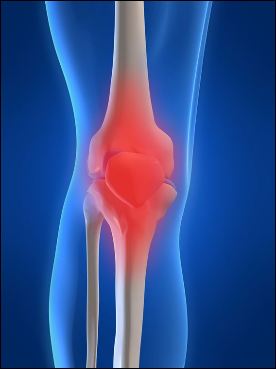 Sacramento Running News | knee replacement